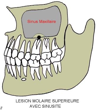 Le lien Entre les Sinus et les maux de Dents