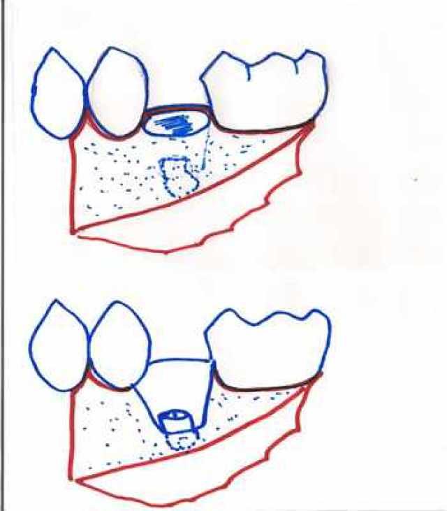 """Résultat de recherche d'images pour """"alvéolectomie dentaire"""""""