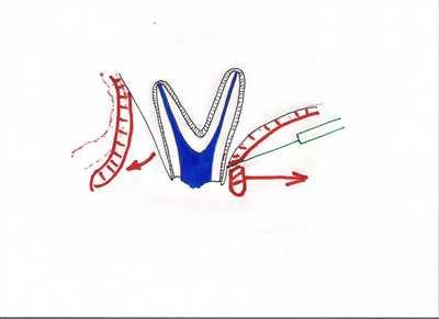 gingivectomie palatine et lambeau vetibulaie