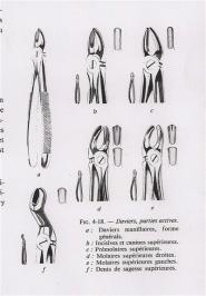 """Résultat de recherche d'images pour """"daviers dentaires"""""""