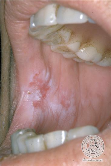 la leucokeratose ou leucoplasie conseil dentaire dr