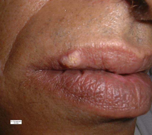 La souillure sur la peau et la condensation