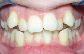 """Résultat de recherche d'images pour """"malposition dentaire"""""""