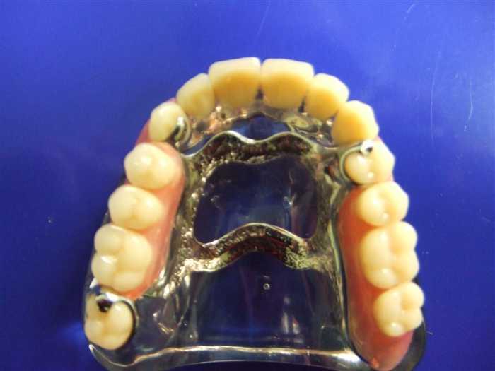 De prothesiste dentaire