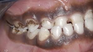 les taches noires et brunes sur les muqueuses conseil dentaire dr hauteville. Black Bedroom Furniture Sets. Home Design Ideas